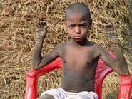 الطفل الحجري.. مرضه يصيب أهالي قريته بالذعر