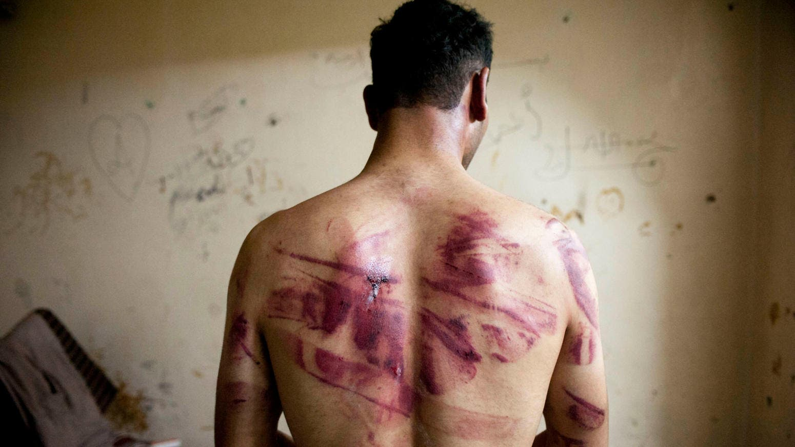 Syrian man shows marks of tortue on his back after he was released from prison in 2012. (AFP)