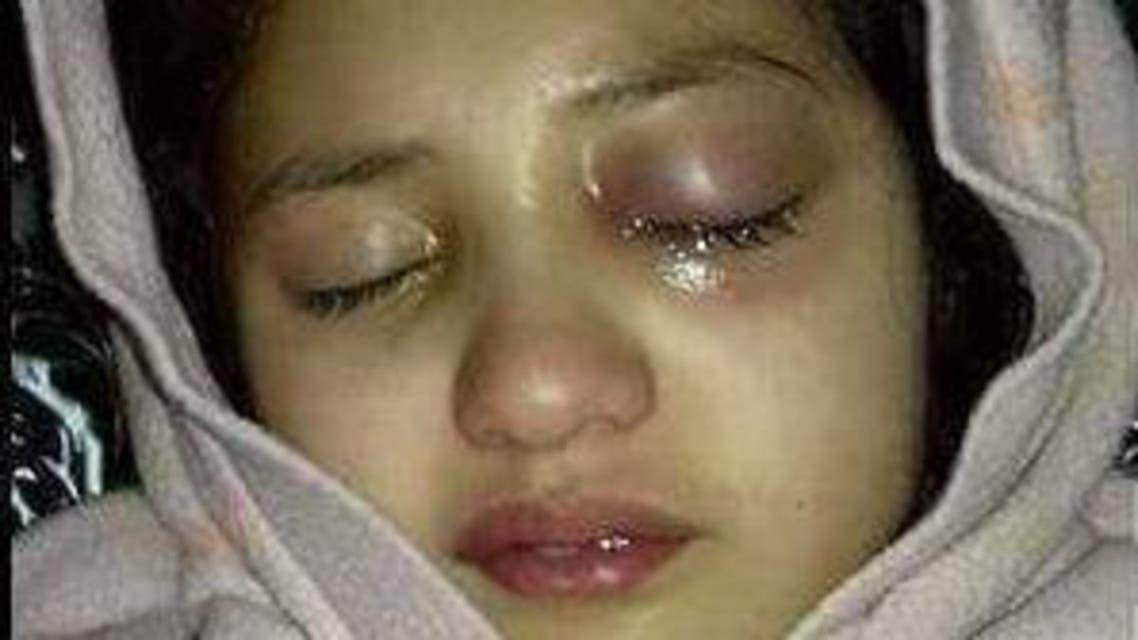 اتهامات لمعلمة مغربية بقتل طفلة عمرها 10 سنوات