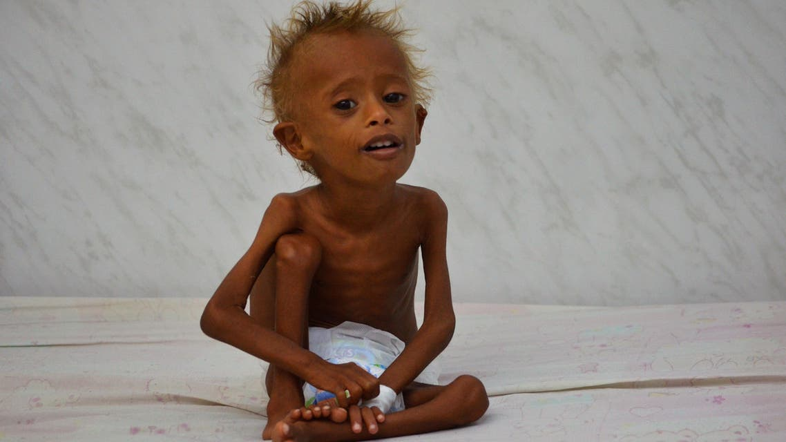"""Salem Abdullah Musabih, 6, sits on a bed at a malnutrition intensive care unit at a hospital in the Red Sea port city of Hodaida, Yemen September 11, 2016. REUTERS/Abduljabbar Zeyad SEARCH """"FAMINE YEMEN"""" FOR THIS STORY. SEARCH """"WIDER IMAGE"""" FOR ALL STORIES."""