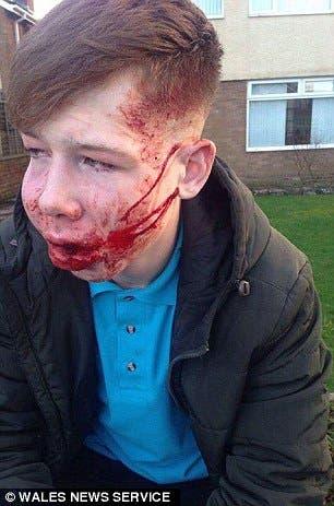صور الصبي الضحية أثارت صدمة