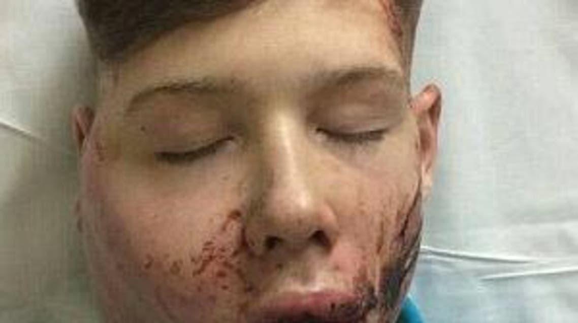 صبي عنف تنمر مدرسي