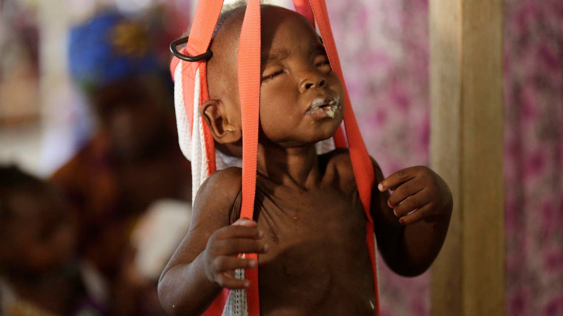 In this Monday, Aug. 29, 2016 file photo, a malnourished child is weighed on a scales at a clinic run by Doctors Without Borders in Maiduguri, Nigeria. AP