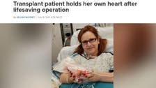 Woman holds her own heart in hands after life-saving surgery