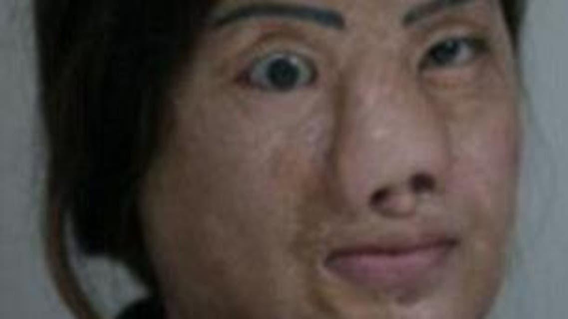 وجه مشوه 1