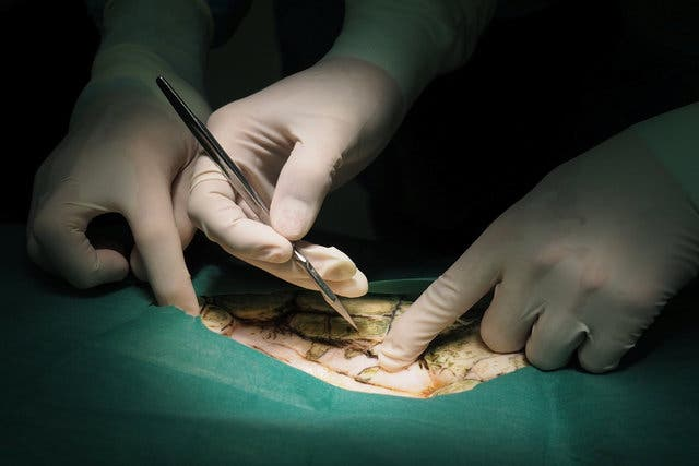 أثناء الجراحة