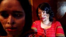 Bangladesh acid attack survivors show new confidence on fashion runway