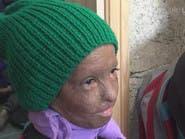 بالفيديو.. حين يتشبث أطفال سوريا بالأمل