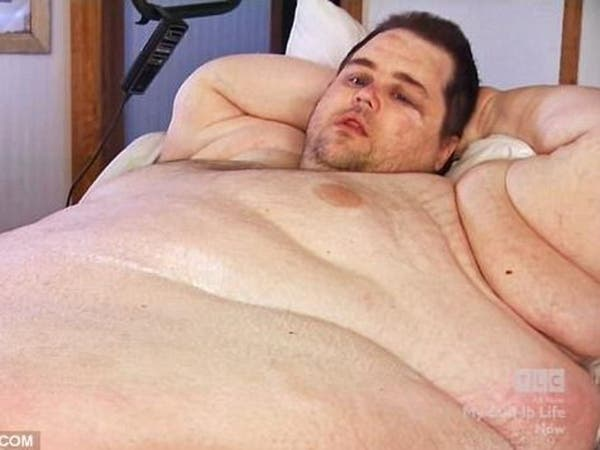 بالصور.. كيف وصل وزن هذا الرجل إلى 380 كيلوغراماً؟