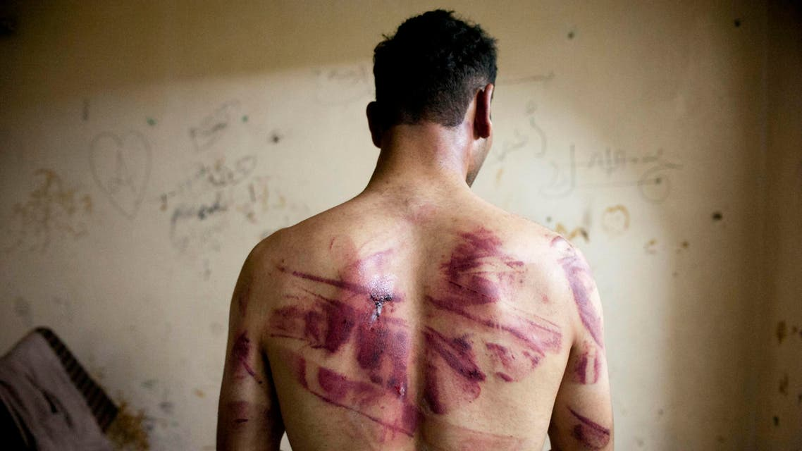 A Syrian man shows marks of torture on his back, after he was released from regime forces, in the Bustan Pasha neighbourhood of Syria's northern city of Aleppo on August 23, 2012. AFP