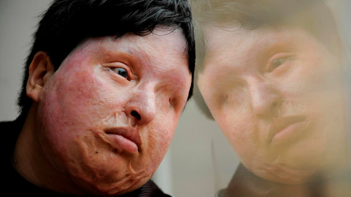 In this March 4, 2009 file photo, Ameneh Bahrami, who was blinded and disfigured by a man who poured acid on her face in 2004 for rejecting his marriage proposal, poses for a portrait at a hospital in Barcelona, Spain. (AP)