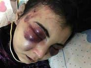 ماذا فعلت هذه المصرية حتى عذبها زوجها بوحشية؟