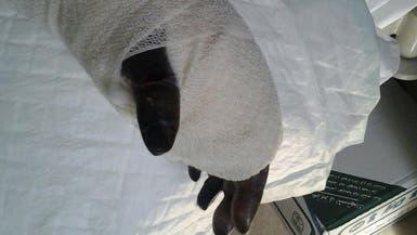 سعودية دخلت المستشفى لإزالة اللوزتين فخرجت بلا يد