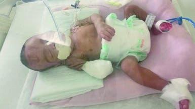 نهاية مؤلمة.. بتر يد طفل سعودي بسبب خطأ طبي