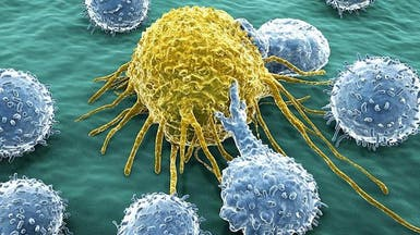 تعرف على السبب الأكثر شيوعا للإصابة بالسرطان