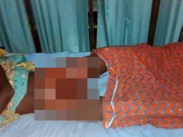 قاما بحرق العضو التناسلي لمراهق اغتصب طفلتهما