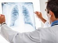 مفاجأة.. الرئة تقوم بوظيفة أخرى بجانب التنفس