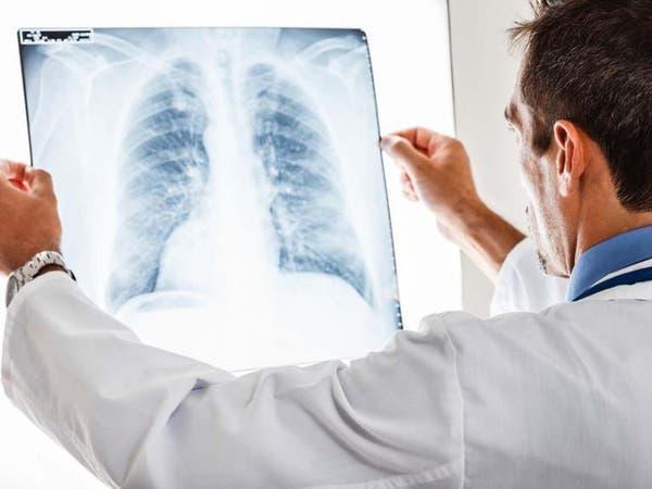 تطوير تقنية لفحص الرئة تقلل من استخدام المضادات الحيوية