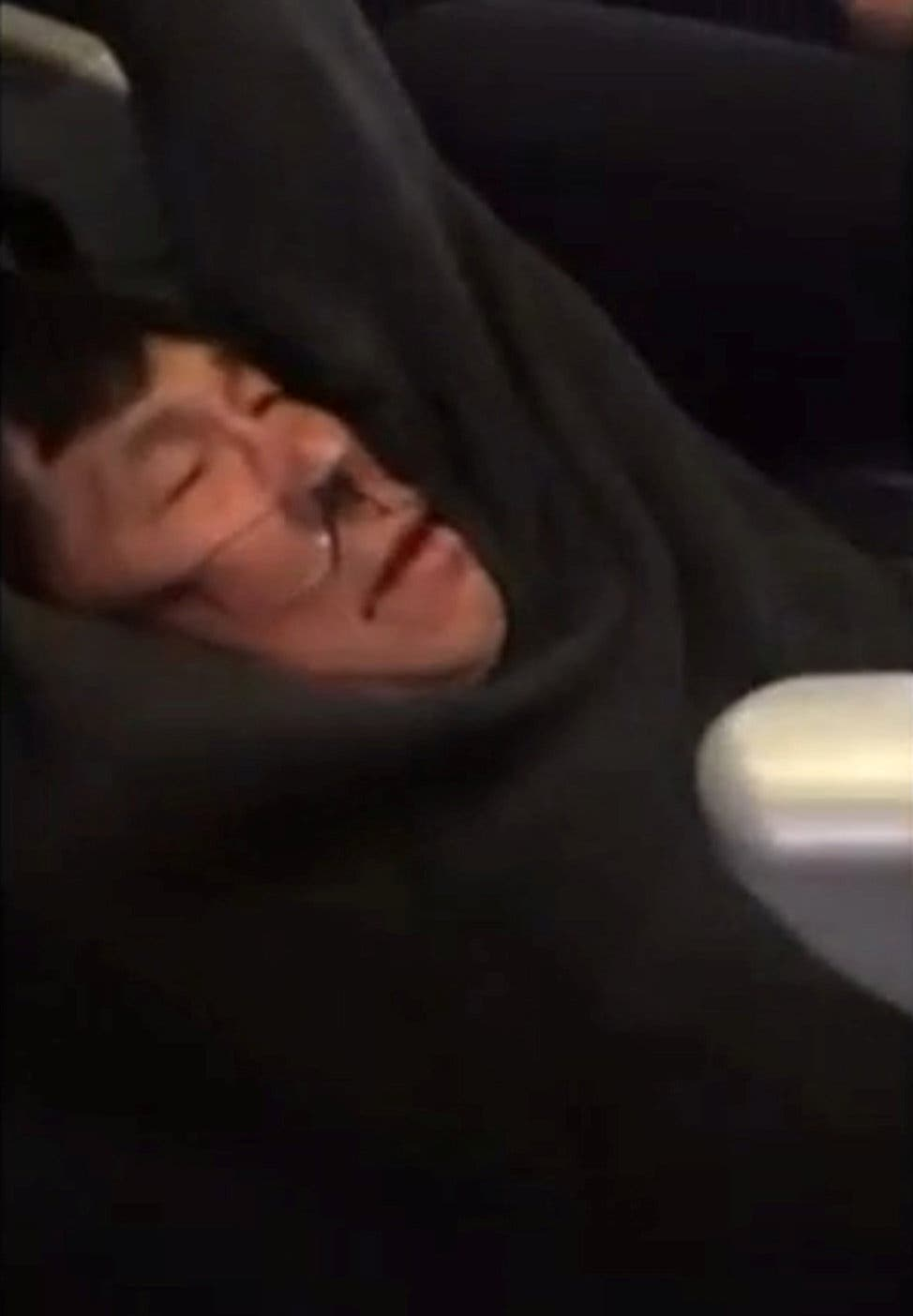 Videos that showed a man who appeared to be Asian being dragged off United Flight 3411. (Reuters)