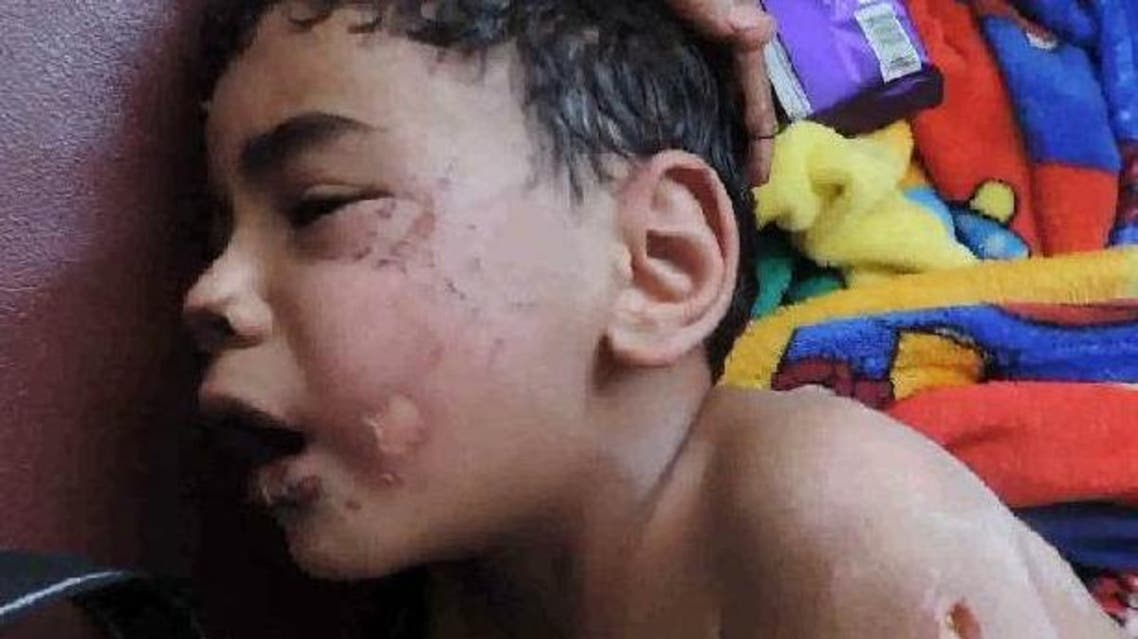 الطفل المصري المعنف