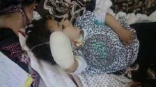 العراق.. استقالة جماعية لأطباء عقب بتر يد طفلة بالخطأ