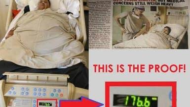 مفاجأة الطبيب الهندي.. فيديو وصور جديدة لصاحبة النصف طن