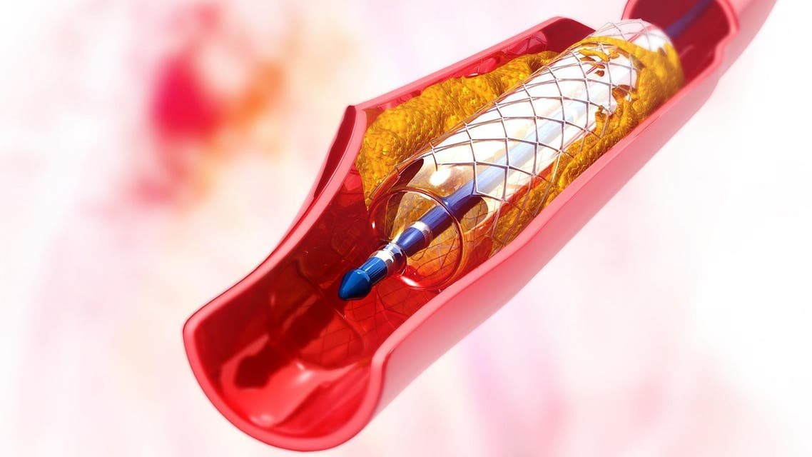 stent image from shutterstock used for fake drugs in pakistan story