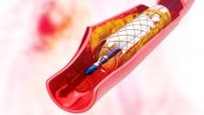 Stents no better than drugs for many heart patients: US study