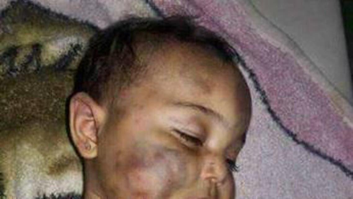 أب سوري يقتل ابنته عضاً