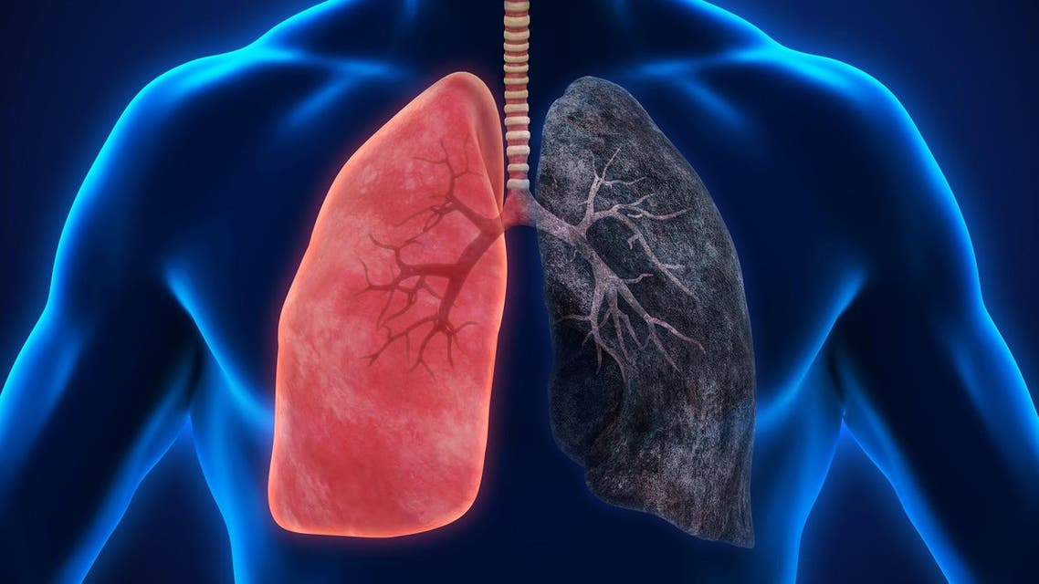 ealthy Lung and Smokers Lung. 3D rendering. (Shutterstock)
