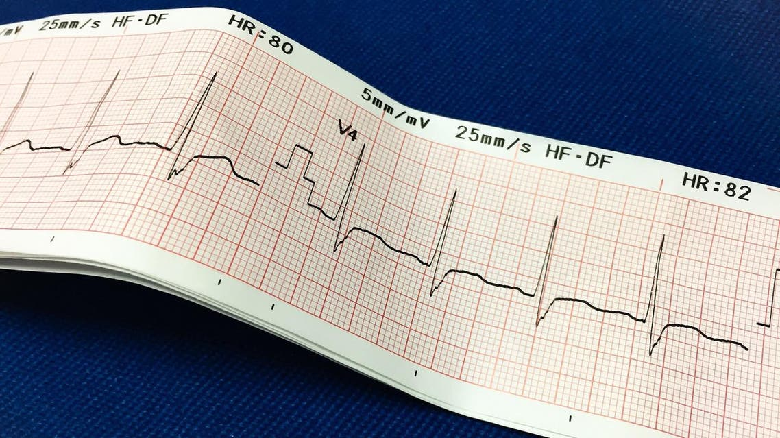 Electrocardiogram - (Shutterstock)