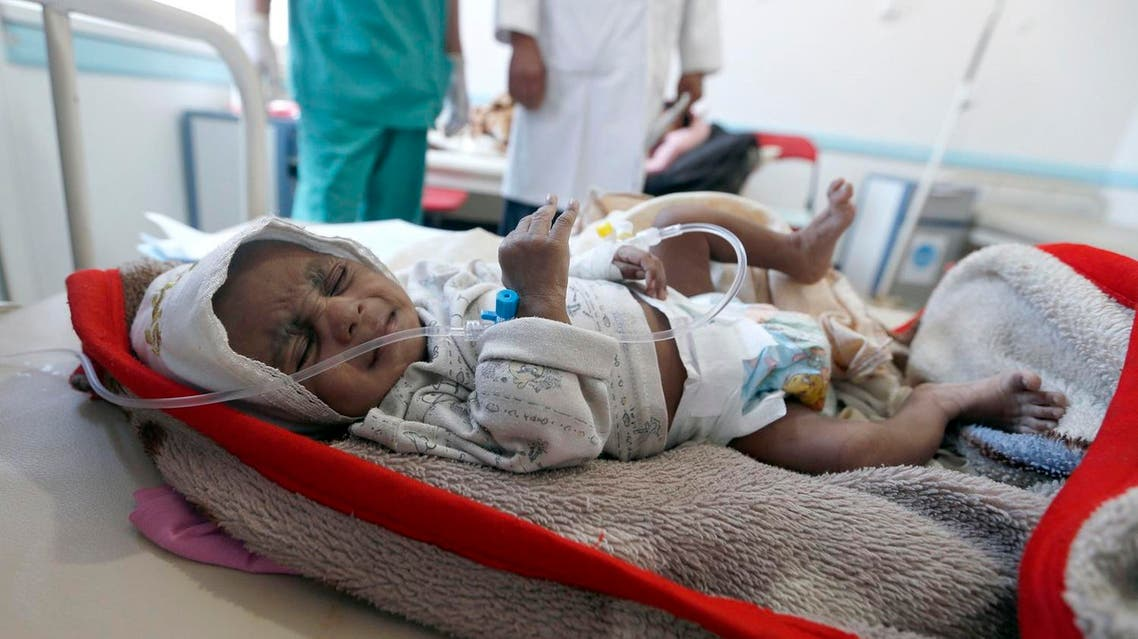 "A Yemeni child suspected of being infected with cholera receives treatment at a hospital in Sanaa on May 25, 2017. Cholera has killed 315 people in Yemen in under a month, the World Health Organization has said, as another aid organisation warned Monday the outbreak could become a ""full-blown epidemic""."