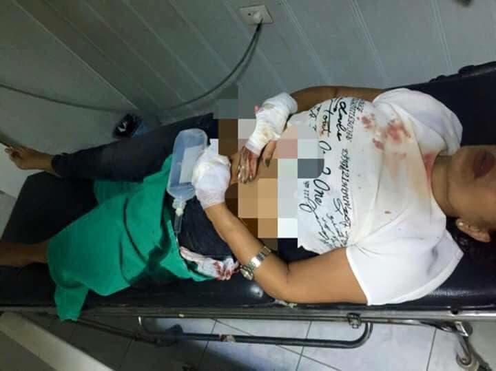 مسعود بعد نقلها إلى المستشفى وإصابتها بأربع طلقات