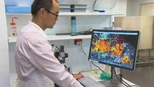 إنجاز علمي يسمح بتحسين تشخيص الإصابة بالسرطان