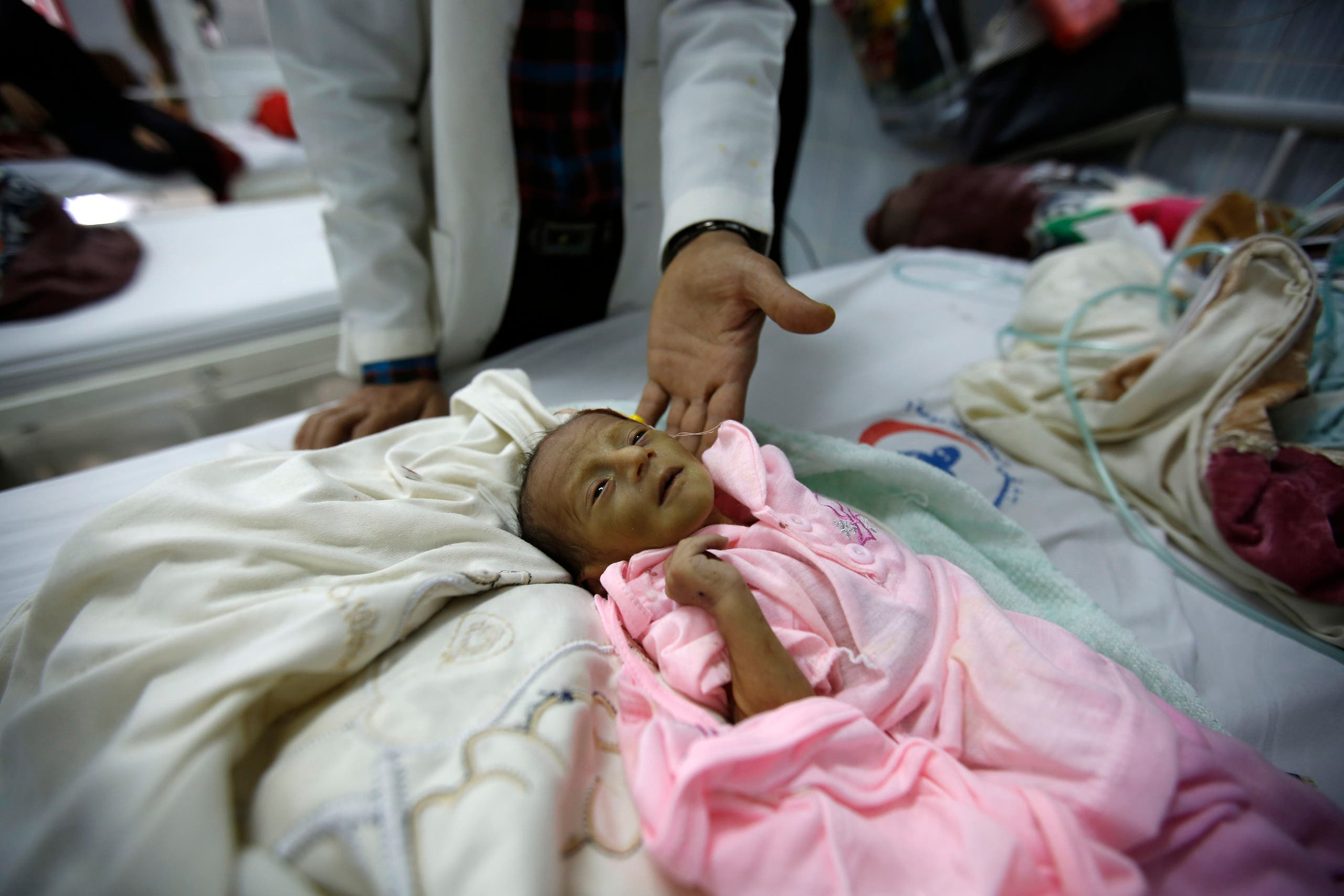 In this Sunday, Jan. 24, 2016 photo, a doctor touches a malnourished child at a therapeutic feeding center in a hospital in Sanaa, Yemen. (AP)