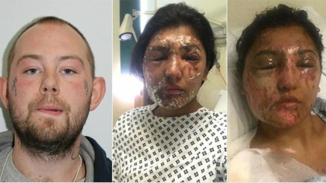 an acid attack in east London last week that left an aspiring model and her cousin with life-changing injuries and is now being treated as a hate crime.