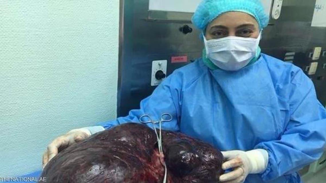 خارج کردن غده 17.5 کیلوگرمی از شکم یک زن اماراتی