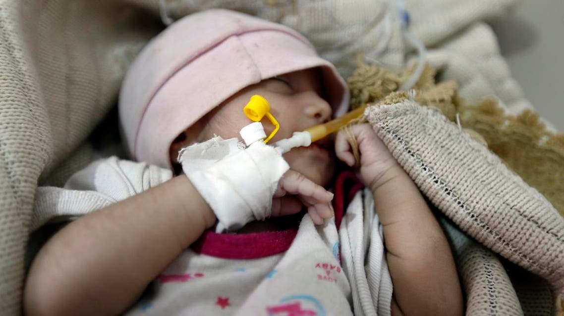 A Yemeni infant suspected of being infected with cholera receives treatment at Sabaeen Hospital in Sanaa. (AFP)