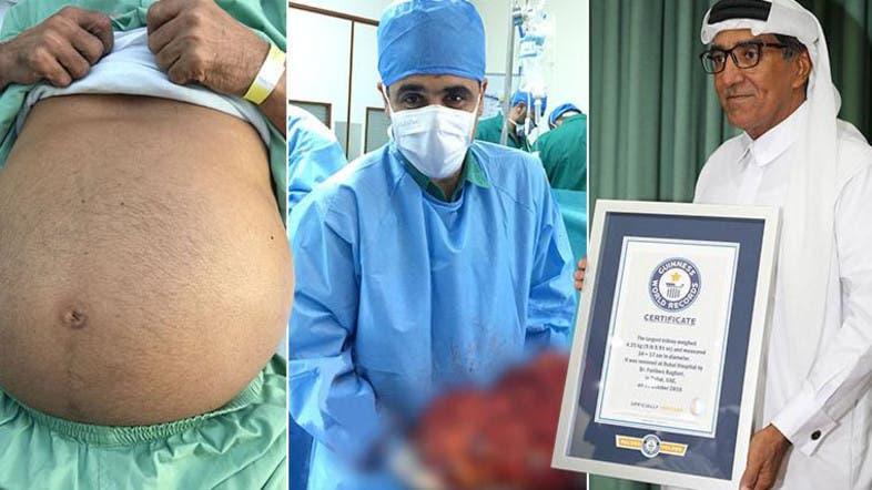 Dubai Hospital Receives Guinness Award For Removing Worlds Largest