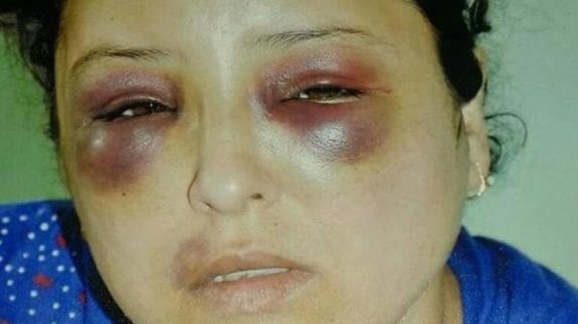 Abir Ahmad Khalil was brutally assaulted after she refused to give them cigarettes for free. (Al Arabiya)