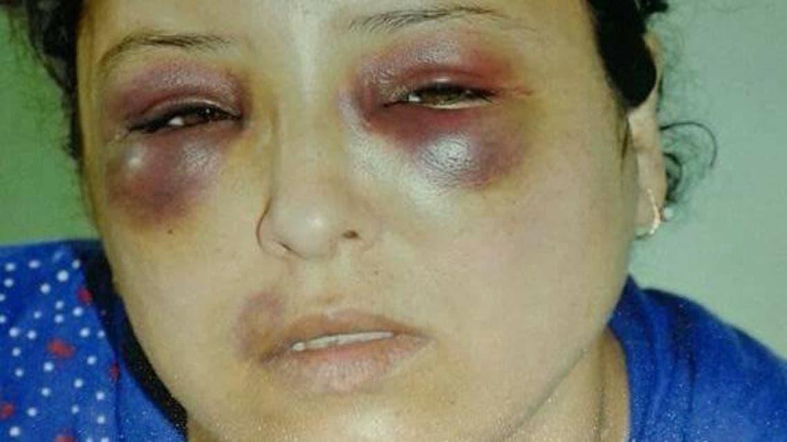 الاعتداء على امرأة