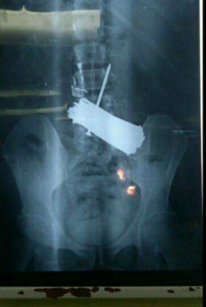 لن تصديق ماذا وجد في معدة مريض مصري!