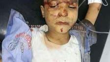 مصر.. تعافي أغلب مصابي حادث تصادم القطارين