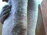 تفشى بين المصريين..ما هو مرض قشر السمك الذي يصعب علاجه؟
