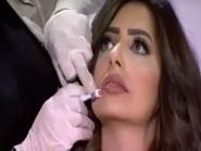 شاهد.. مذيعة مصرية تحقن شفتيها على الهواء مباشرة