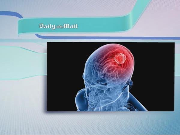 يمكن لفيروس زيكا أن يقضي على سرطان الدماغ