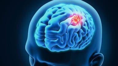 """هل يستخدم فيروس """"زيكا"""" في علاج سرطان الدماغ؟"""