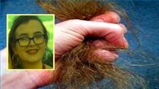 ياسمين المراهقة معتلة بمرض جعلها تأكل شعرها حتى ماتت