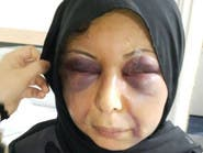 شاهد.. قصة السورية التي شوهها زوجها بحادثة هزت البحرين