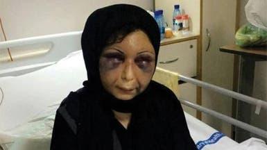 """صور مؤلمة جديدة للسورية """"زهراء"""" بعد خروجها من المستشفى"""